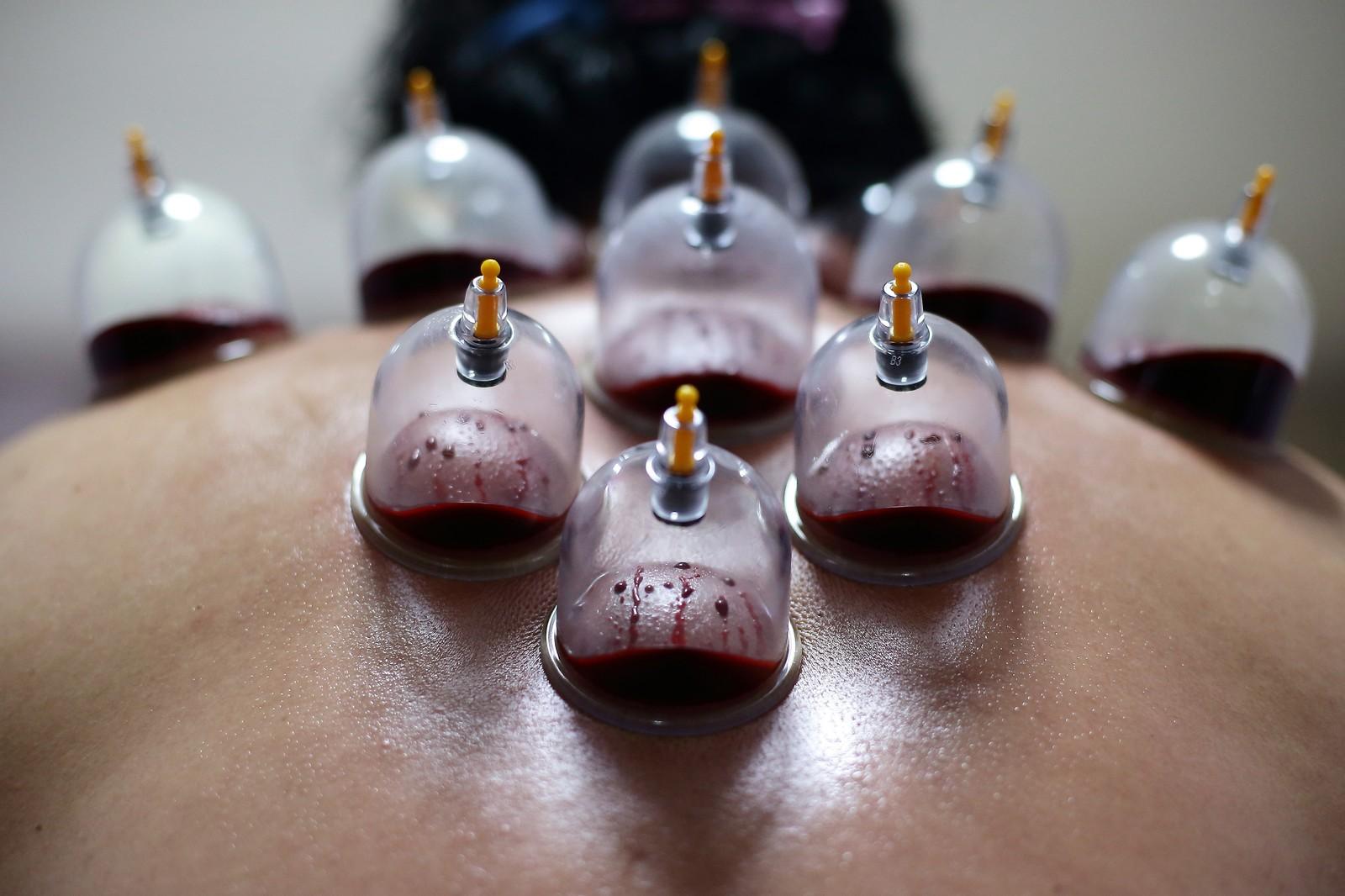 остеохондроз позвоночника лечение мазями