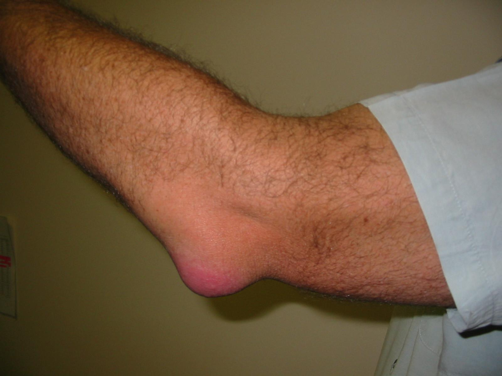 Бурсит или воспаление суставной сумки как лечить