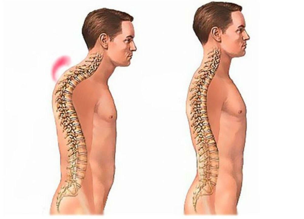 Как лечить искривление шейного отдела позвоночника