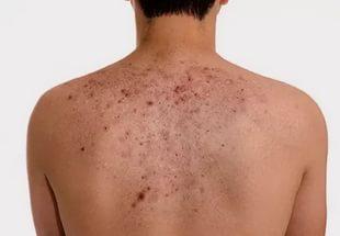 Крем для лица жирной и проблемной кожи