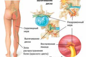 Симптомы и лечение ишиаса