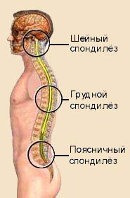 лечение спондилеза грудного отдела позвоночника